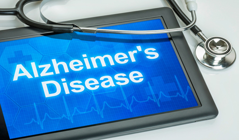 Dietary supplements and the prevention of Alzheimer's Disease