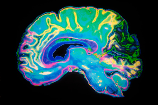 Higher vascular risk in middle age linked to less healthy brains