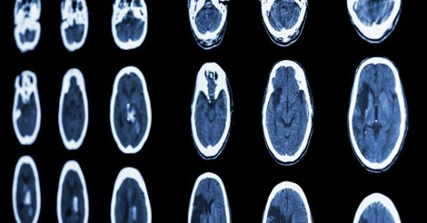 CT scan with brain showing signs of stroke
