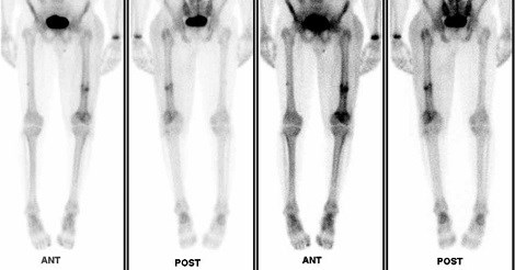 Nuclear bone scan in same patient showing increased uptake at AFF site on left femur and also small amount of uptake on the lateral aspect of right femur at area of incomplete AFF