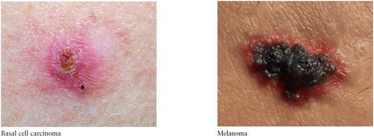 Identifying common skin problems in the elderly