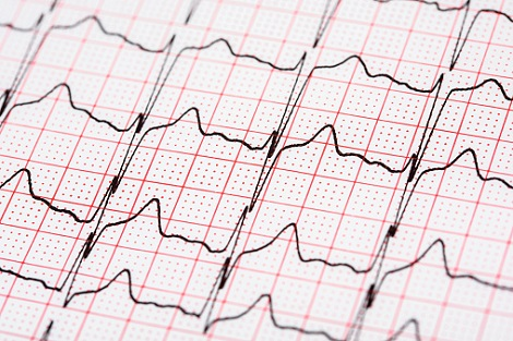 Subclinical atrial fibrillation in the elderly patient