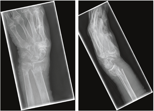 16+ Other osteoporosis with current pathological fracture ideas in 2021