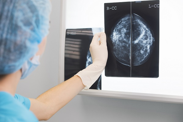 Breast cancer management in primary care