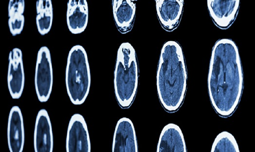 Potential stroke and coronavirus link puts urgency on further research