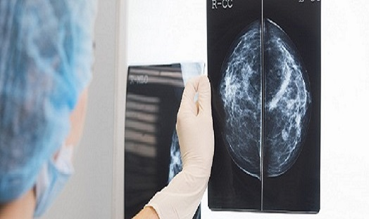 Breast cancer becomes most diagnosed cancer in the world