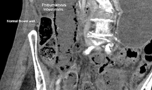 Pneumatosis intestinalis: a radiological sign not to be missed