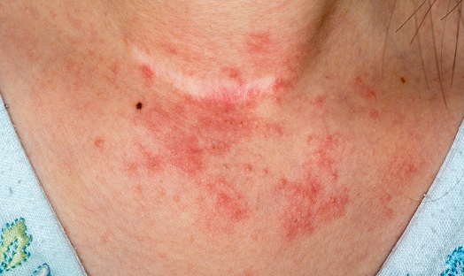 Contact dermatitis in the older patient: what are the challenges?