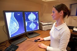 Women reject a preventive treatment for breast cancer
